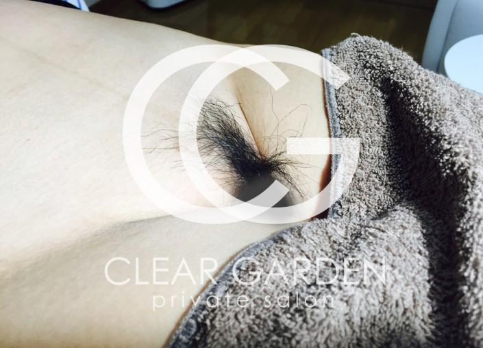 他のワックス脱毛と同様に、脱毛をする部位に温めたワックス剤を薄く塗ってのばし、その上にワックス脱毛専用の不織布をあてて引きはがすのが一般的な手順である。また、ワックス剤にはソフトとハードがあり、施術部位や毛の長さ、技術者の好み(溶剤の扱いやすさ)により用途が異なる。上記のように、専用の不織布を当てず、ワックス剤を肌に塗布し、数十秒後に堅くなってきたワックス剤をそのまま引きはがす溶剤もある。